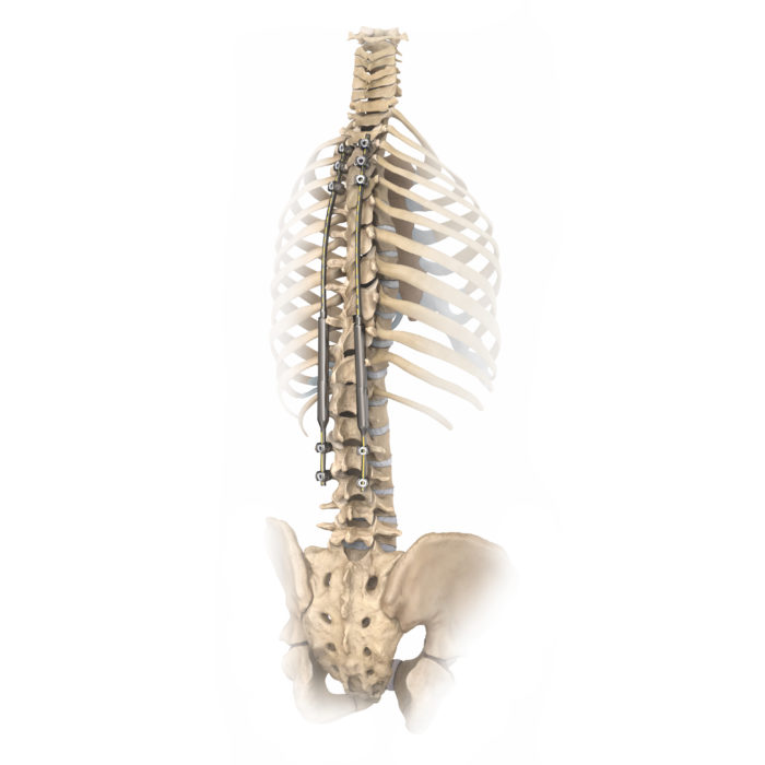 Spine with ribs magic v3